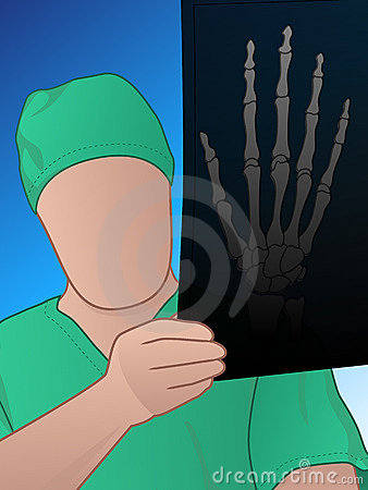 Doctor examining a hand xray