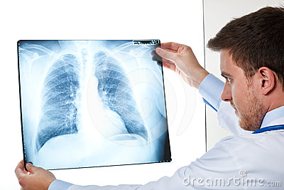 Doctor holding a radiography