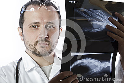 Doctor holding an x-ray appeal of a hand