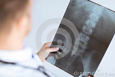 Doctor holding x-ray or roentgen image