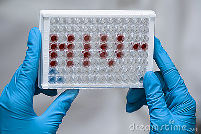 Doctor holds microplate with HIV abbreviation