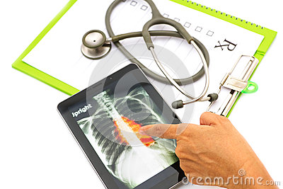 Doctor looking chest  x-ray image on tablet