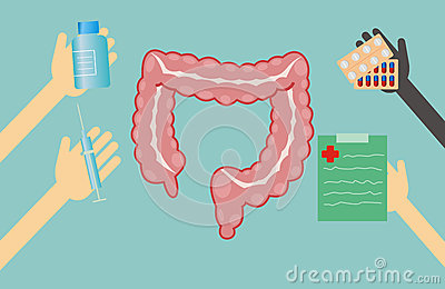 Doctors offer treatment for large intestine Stock Photo