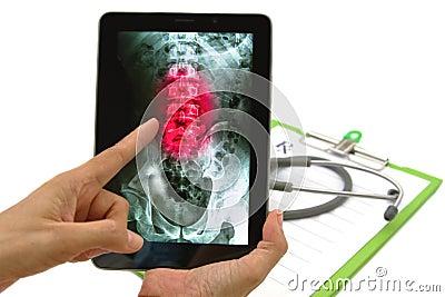 Doktorski przyglądający dolędźwiowego kręgosłupa promieniowania rentgenowskiego wizerunek na pastylce