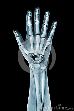 Dramatized x ray of a hand on black