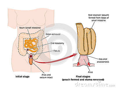 Drawing of rectal pouch after bowel removal