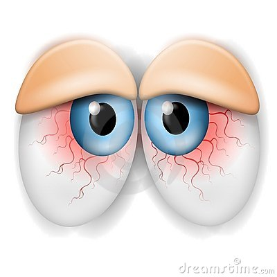 Free Droopy Tired Bloodshot Eyes Stock Photography - 5508722