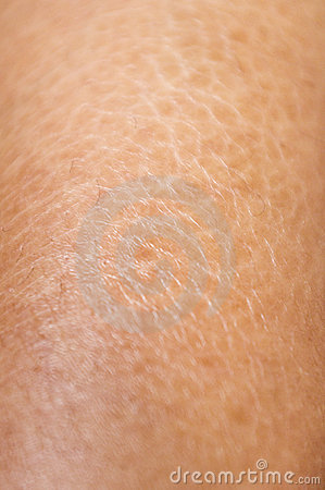 Free Dry And Cracked Skin Textures Close Up Stock Photo - 22629560
