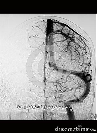 DSA of the cranial circulation (venous phase)