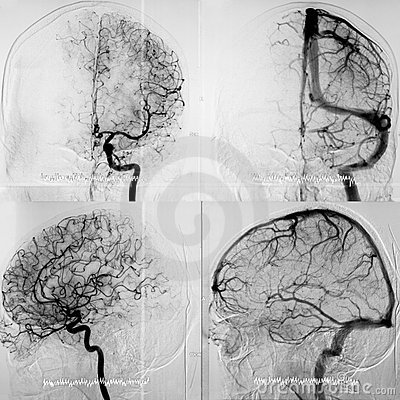 Free DSA Of The Cranial Circulation, Both Phases Royalty Free Stock Photos - 22490258