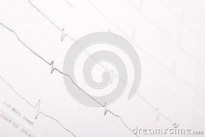 ECG chart (electrocardiogram)