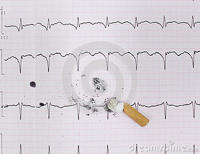 ECG and cigarette butt. The harm of smoking,