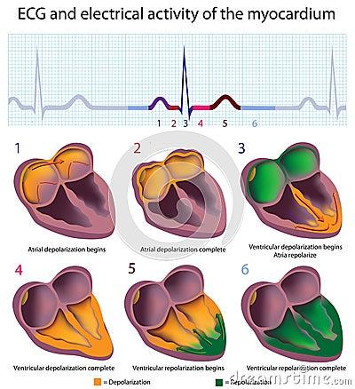 ECG explained