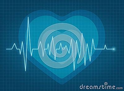 ECG pulse