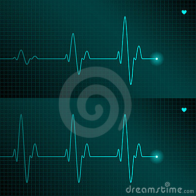 Free ECG Tracing Royalty Free Stock Photo - 11569965