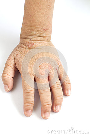 5 symptoms of eczema