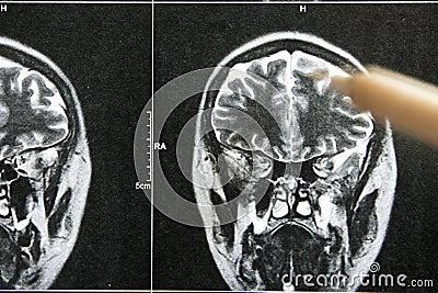 EEG x-ray skulls