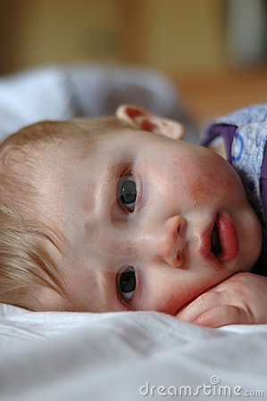 Free Eight Month Old Sick Baby Lying In Bed Stock Photo - 6087620
