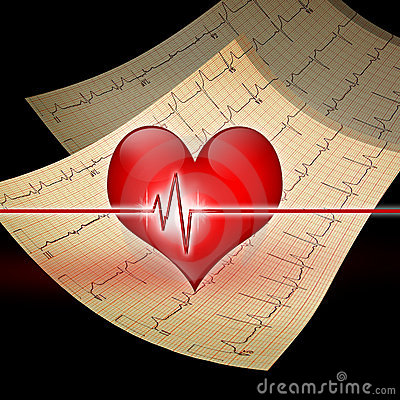 Ekg καρδιά