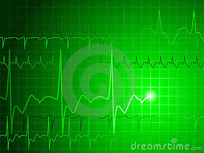 EKG background