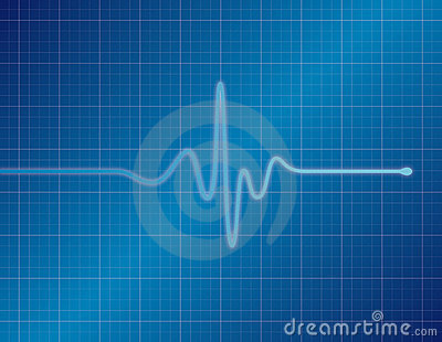 EKG - Blue