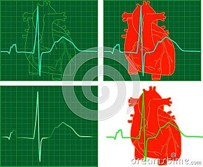 EKG_ECG