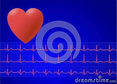 EKG/ ECG 4