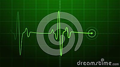 EKG - Electrocardiogram