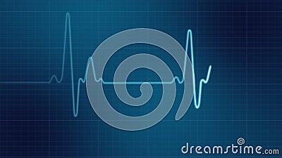 EKG heart monitor