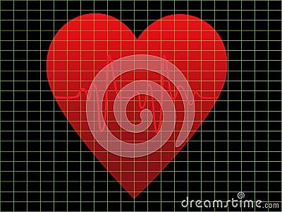 EKG or heart monitor