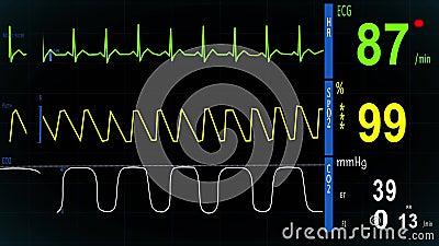 Ekg Heart Monitor Normal Sinus Rhythm Show Waves Saturation Kapnograf Illustrations Royalty Free
