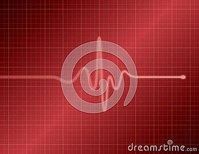 EKG - Red