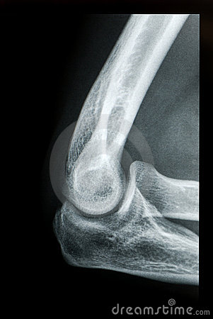 Elbow X-ray