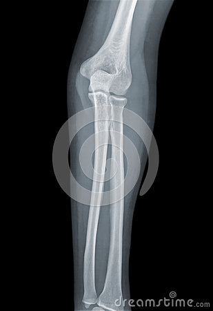 Elbow X-ray negative