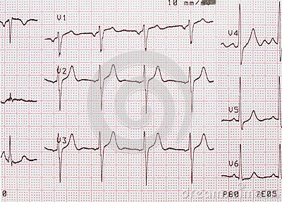 how to read an ekg printout