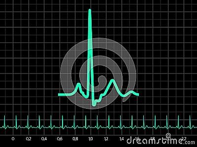 Electrocardiogram (EKG). EPS 8