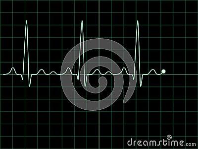 Electrocardiogram on an oscilloscope