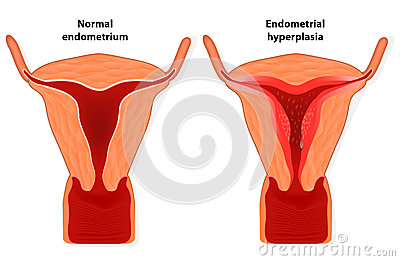 Low glycaemic index diet and endometrial cancer risk in polycystic ovary syndrome