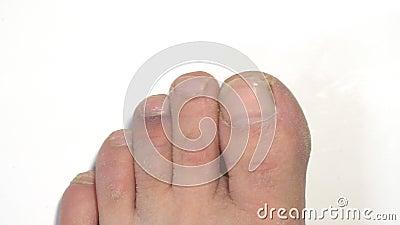 A equimose no dedo do pé vídeos de arquivo
