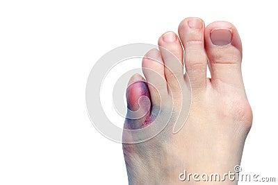 Equimoses, bunions, dedos do pé quebrados