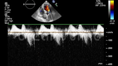 Exame transesofágico do coração vídeos de arquivo