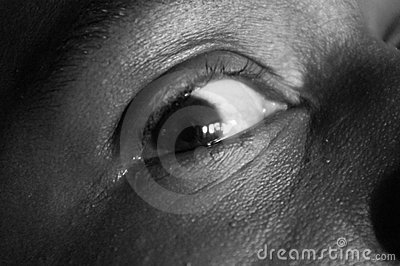 Eye, sadness expression BW