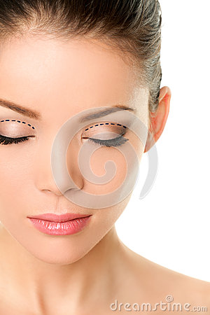 Free Eyelids Plastic Surgery Concept - Asian Monolids Royalty Free Stock Image - 49146966