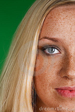 Face with freckles