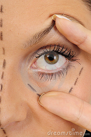 Free Face Lift/ Plastic Surgery Stock Image - 10122761