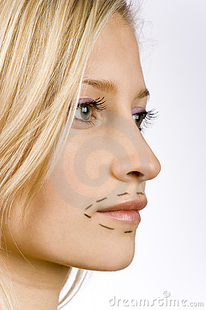 Free Face Of Young Woman Prepared To Plastic Surgery Royalty Free Stock Image - 1417046