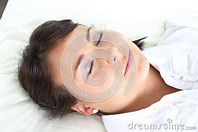 Facial needles