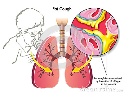Fat cough