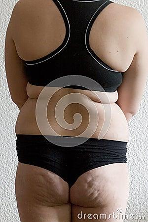 A fat woman