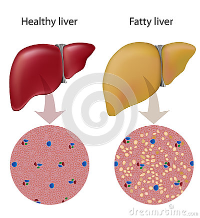 Free Fatty Liver Disease Royalty Free Stock Photos - 29095488